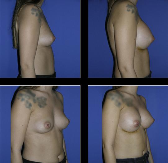 Antes y Después de una operación de pechos.
