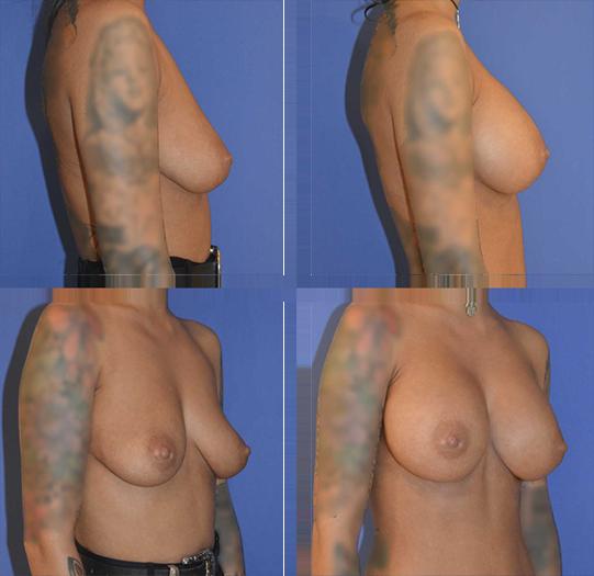 aumento-senos-antes-y-depues-