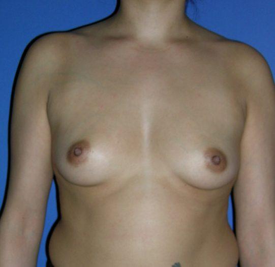 caso de éxito de una operación de pecho