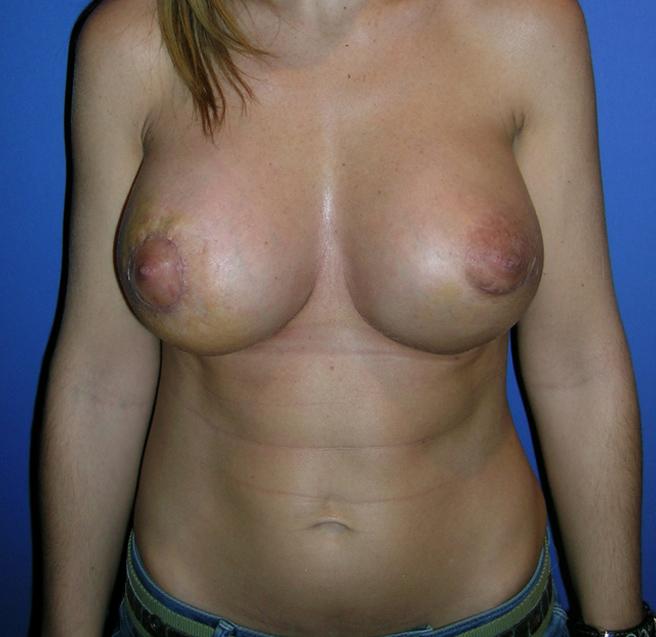 casos de éxito en operaciones de mama.