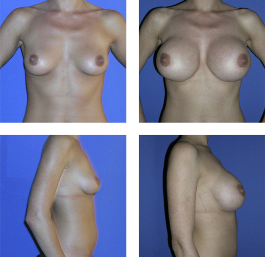 Antes y Después de una operación de senos.