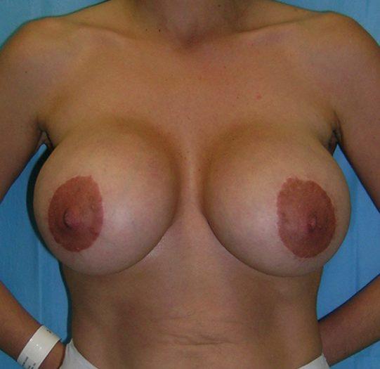 I.C.M: Instituto de Cirugía mamaria en Barcelona
